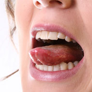 Mouth Sores During Pregnancy