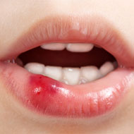 homemade-oral-sores-in-mouth-beach