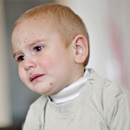 Symptoms Of Eczema In Toddlers