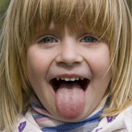 Tongue Blisters In Toddlers